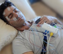 Obstructive Sleep Apnea (osa) e Polisonnografia